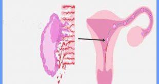 صورة تعرفي علي اعراض الحمل الاولية , علامات الحمل الاولى